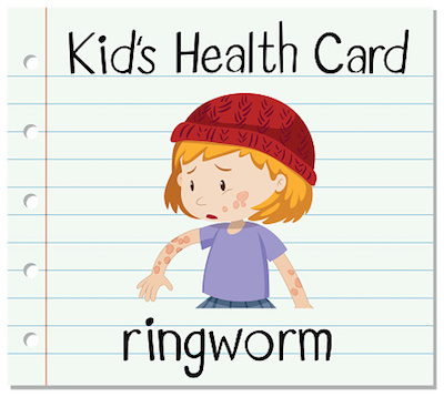 Kids Health Card Ringworm