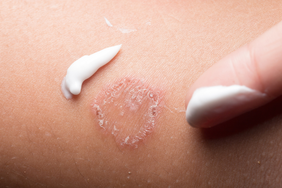 Ringworm: a common skin condition you can treat at home